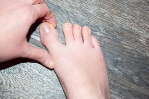 Using the left thumb and pointer finger to separate the big toe from the second toe