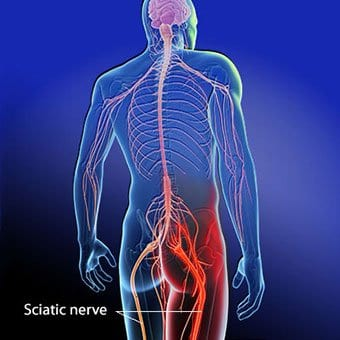 sciatica and hip pain