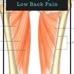 a pin for a post about how your adductor group could be causing your hip or low back pain