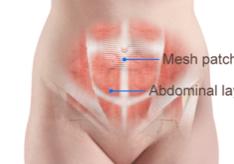 umbilical hernia repair with mesh